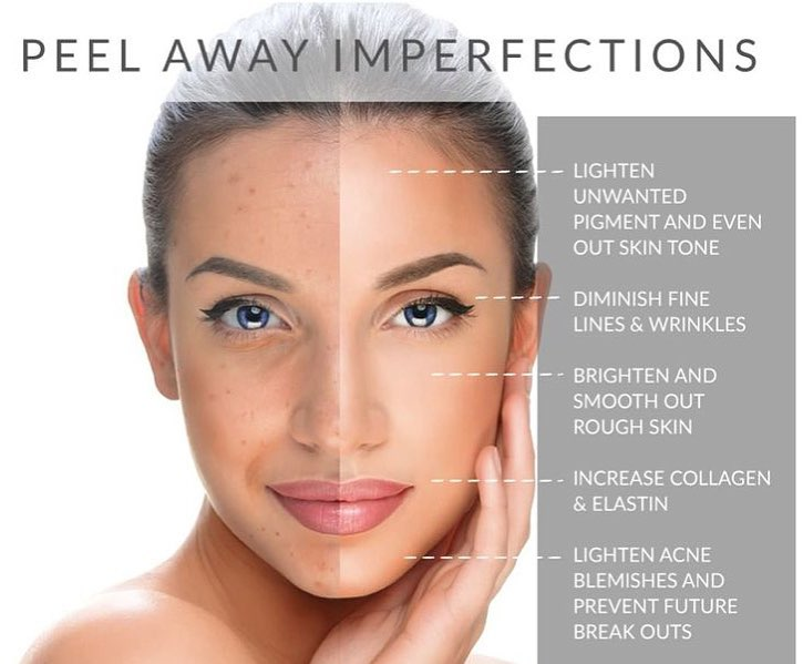Chemical Peels Benefits